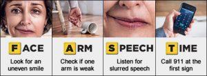 FAST metode stroke