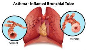 asthma_fr5tghyj