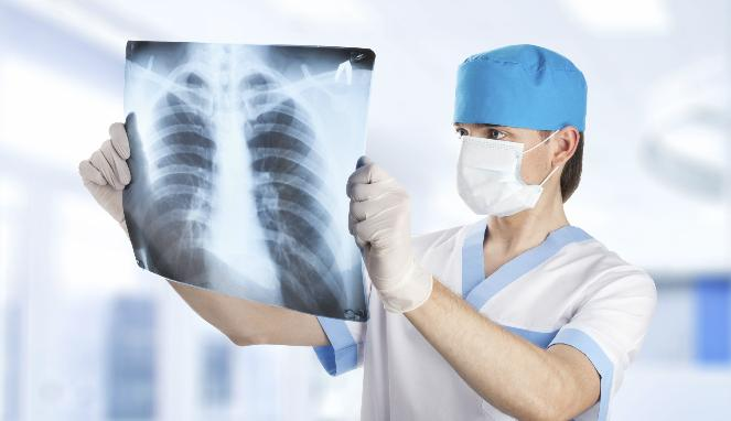 272979_ilustrasi-kesehatan-paru-paru_663_382
